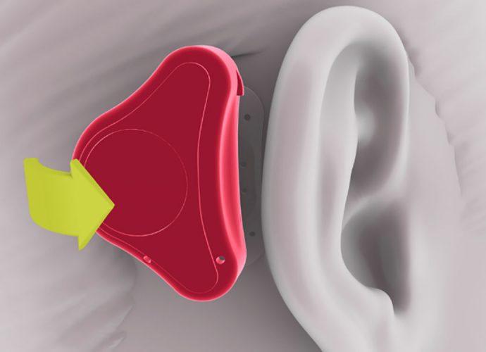دستگاه ADHEAR کمک به افراد دارای مشکل شنوایی